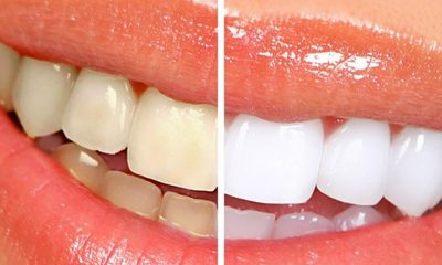westhollywood-teeth-whitening-660x340